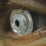 Ya están aquí las primeras lentes de contacto con zoom