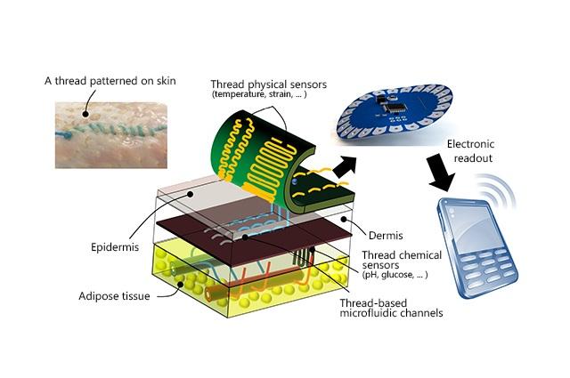 suturas-inteligentes-