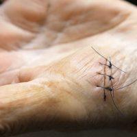 Crean suturas inteligentes que monitorizan la evolución de las heridas