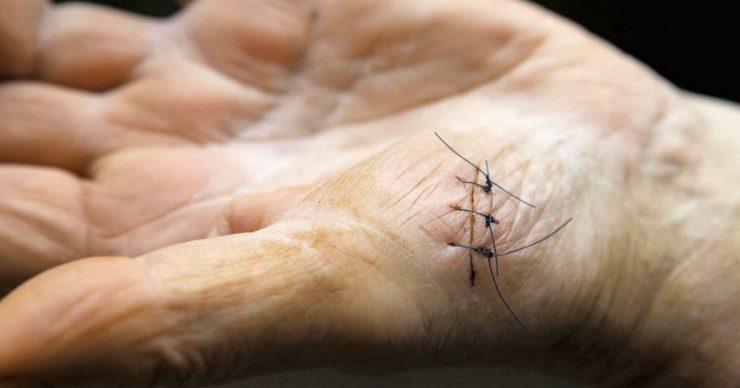 suturas-inteligentes-portada