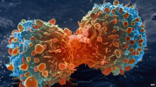 cancer-celula