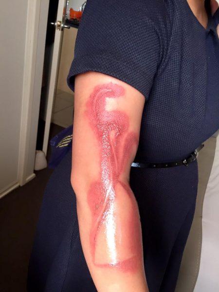 iphone-7-quemadura-brazo