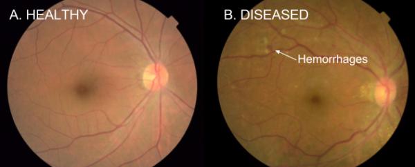 retinopatia-diabetica-google
