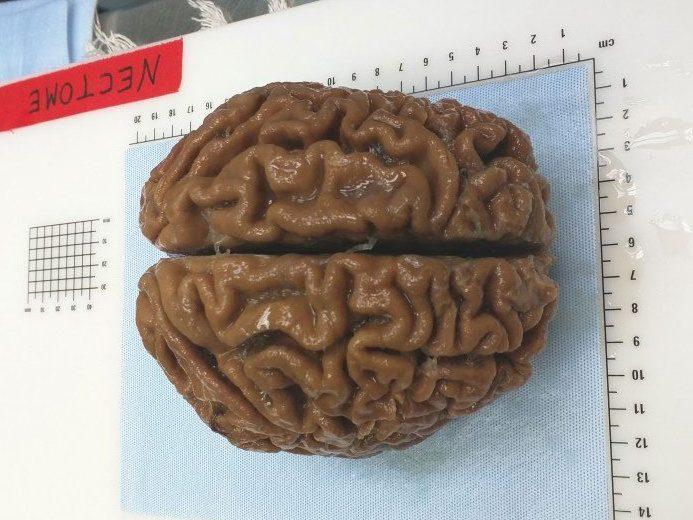 cerebro netcome e1521336244687 0