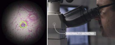 Google utilizará la Realidad Aumentada e Inteligencia Artificial para ayudar en la diagnosis del cáncer