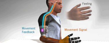 La Universidad de Alberta crea un brazo biónico que proporciona la sensación de tener un brazo real