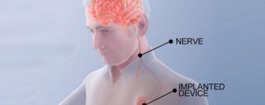 """Un novedoso """"marcapasos cerebral"""" podría acortar los plazos de recuperación en pacientes con aneurismas"""