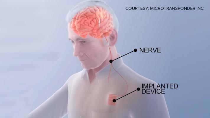 Marcapasos Cerebral 0