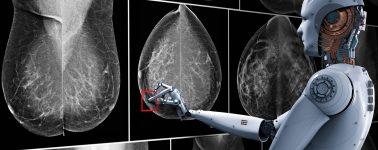 La IA de Google puede detectar el cáncer de mama con más precisión que los médicos