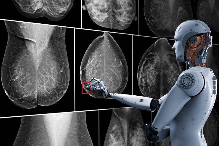 Inteligencia Artificial cáncer de mama
