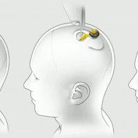 Neuralink mostró el funcionamiento de su dispositivo en el cráneo de un cerdo